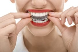 Qualifications of a Good Dental Clinic